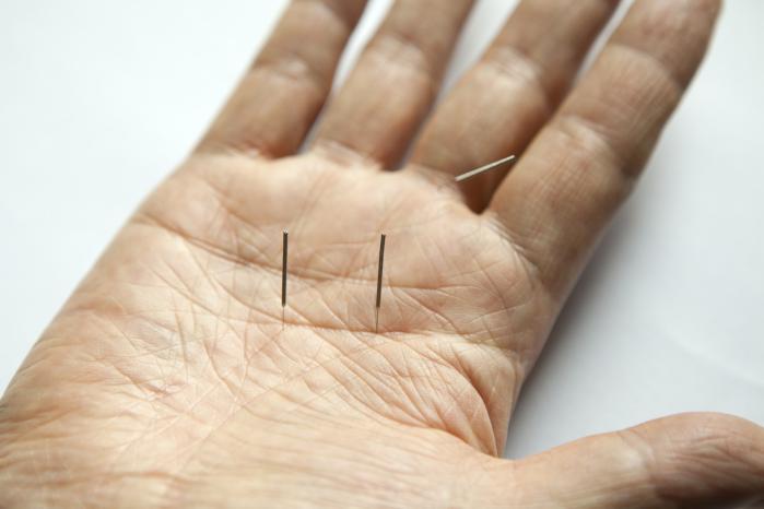 Akupunktur København hjælper dig